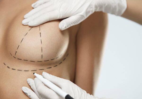 Dr_med_Khorram_Plastischer_aesthetischer_Chirurg_Brustvergroeßerung